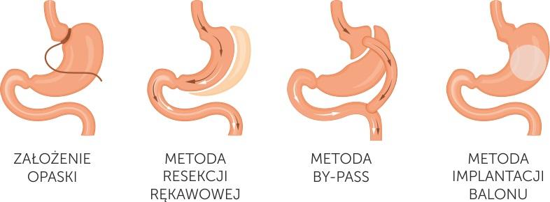 chirurgiczne-leczenie-otyłości